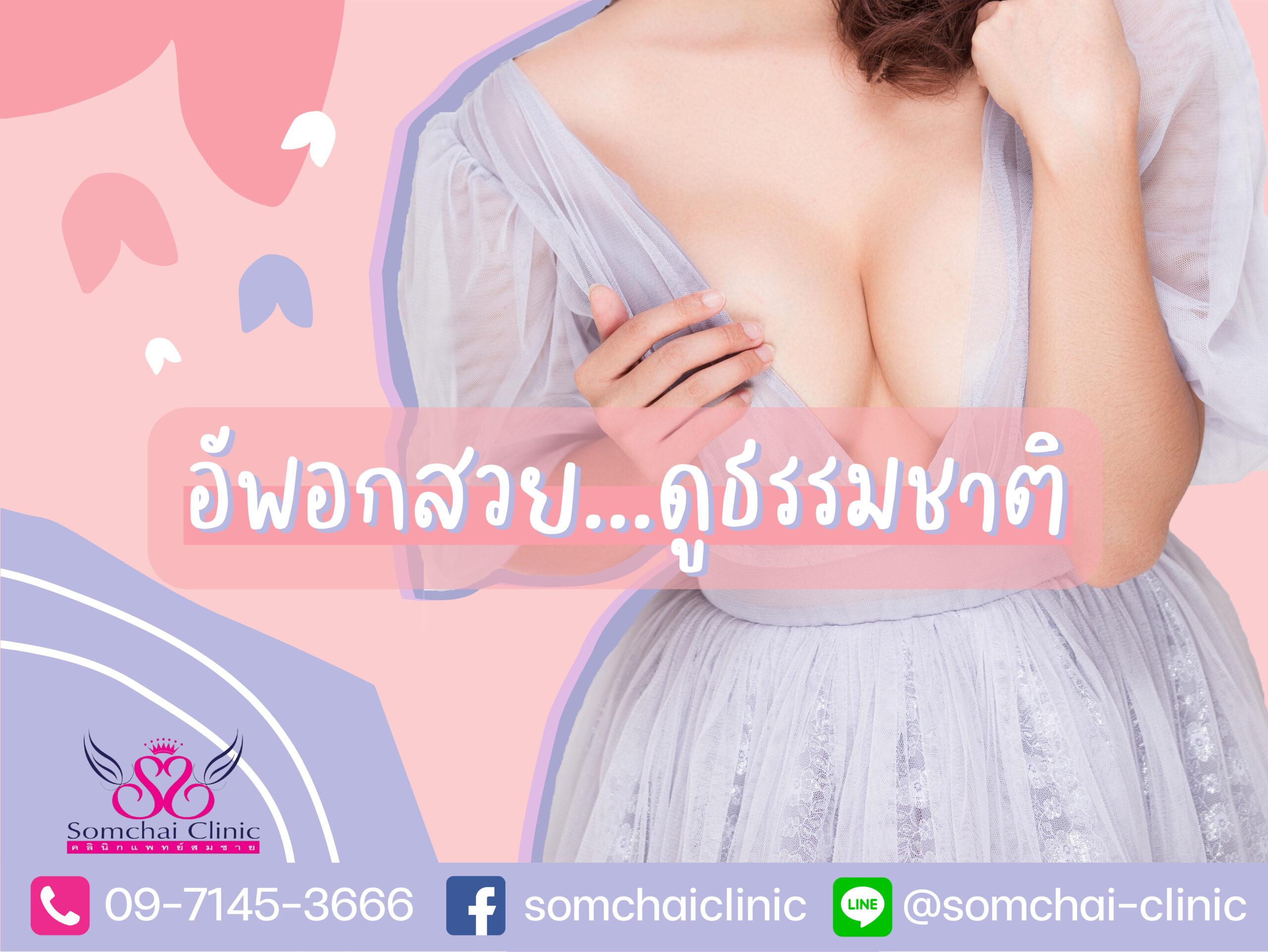 อัพอกสวยดูธรรมชาติ-คลินิกแพทย์สมชาย