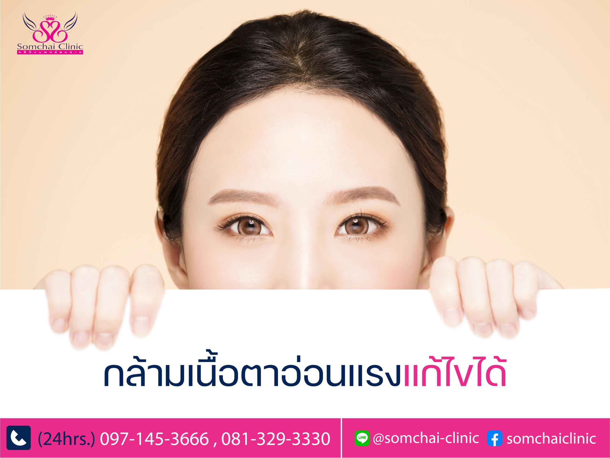 กล้ามเนื้อตาอ่อนแรงแก้ไขได้